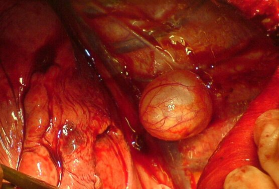 Picture of Bronchogenic Cyst