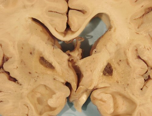 Picture of Lacunar Infarct