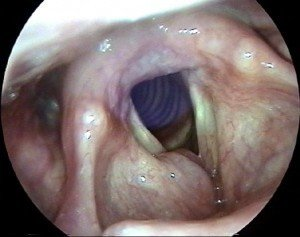 Picture of Laryngocele