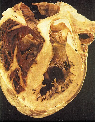 Picture of Peripartum Cardiomyopathy