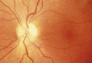 Image of Optic Atrophy