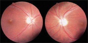 Picture of Optic Atrophy