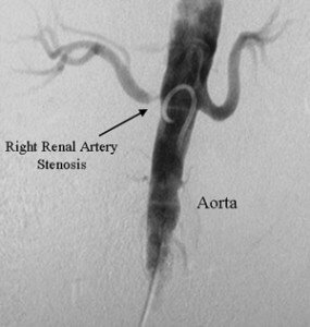 Picture of Renal Artery Stenosis