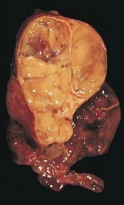 Picture of Thymoma