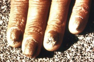 Cracked fingertips due to nail fungus (onychomycosis)