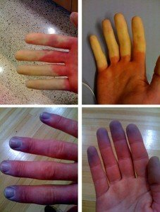 Raynaud disease (phenomenon, syndrome) stages picture
