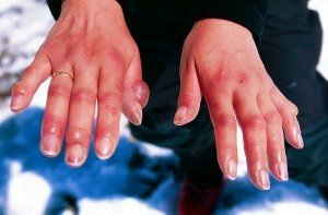 Chilblains on the fingers