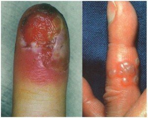 Red-white sore on the fingertip, herpetic whitlow