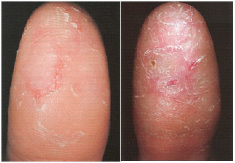 Causes Of Numbness And Tingling Paresthesia In Fingertips