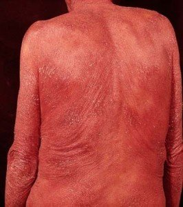 Picture of Sezary Syndrome