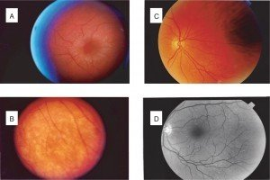 Picture of Alport Syndrome