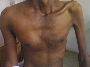 Picture of Subcutaneous Emphysema