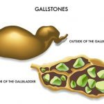 arm pain and gallstone