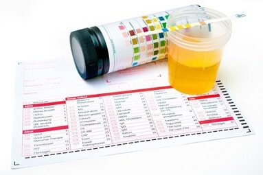 Alcohol And Urine Tests