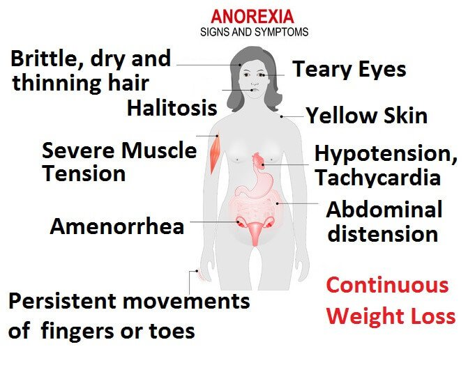 the causes symptoms effects and treatment of anorexia nervosa Anorexia nervosa signs, symptoms, causes, and treatment many of us wish we looked different or could fix something about ourselves that's only human but if a preoccupation with being thin has taken over your eating habits, thoughts, and life, you may have an eating disorder.
