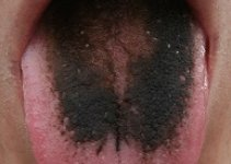Black Spots on the Tongue