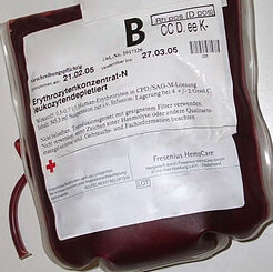 Blood transfusion hemoglobin