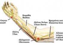 Cubital Tunnel Syndrome photo