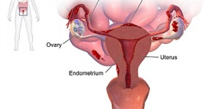 Endometriosis pictures
