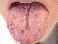 Fissured Tongue Photo