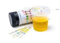 Foamy Urine Causes images