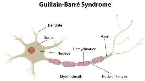Guillain-Barre Syndrome picture