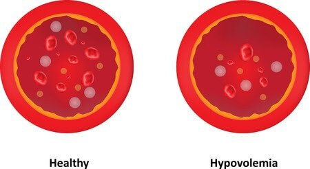 hypovolemia - definition, causes, symptoms and treatment, Skeleton