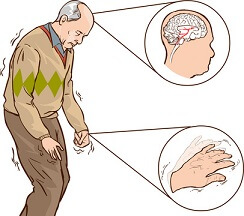 Parkinson tremor