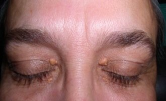 Photos of Xanthelasma
