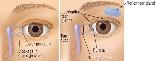 Tear Duct Infection