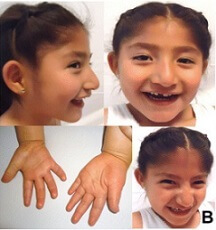 angelman syndrome pictures