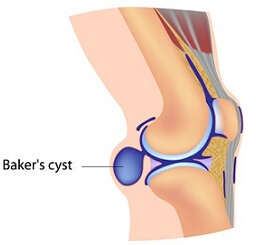 baker's cyst picture 4