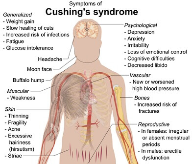 cushing syndrome pictures
