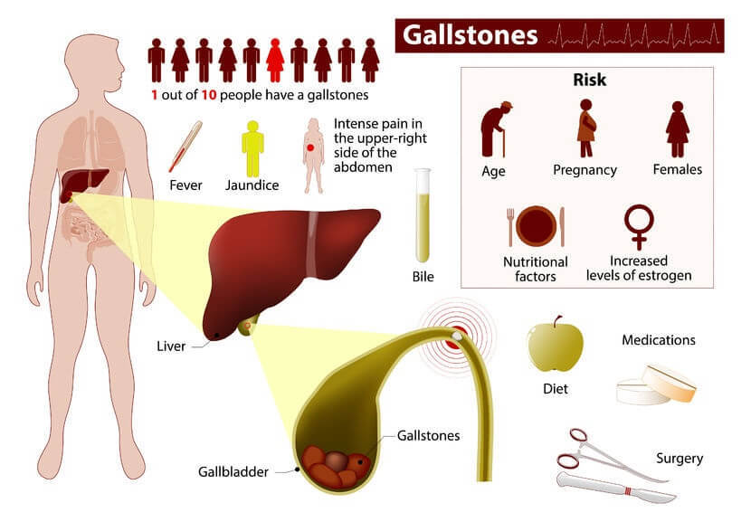 gallbladder attack due to gallstones