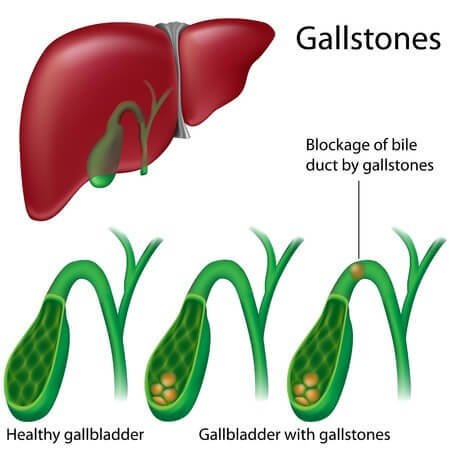 gallstones diagnosis