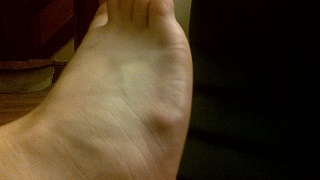 ganglion cyst photos