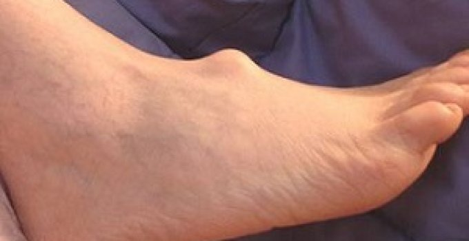 ganglion cyst pictures 2