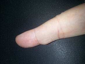 ganglion cyst pictures 3