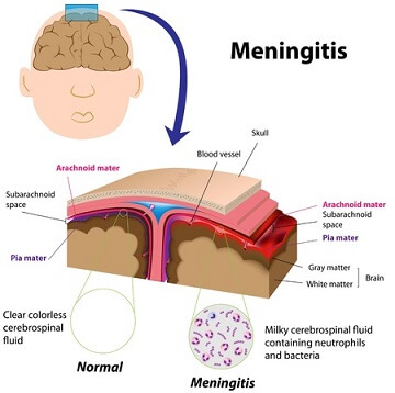 meningitis pictures 1