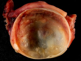 ovarian cyst pictures 2