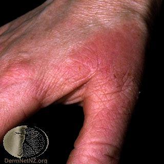 palmar erythema photo