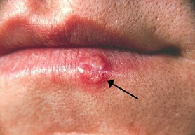 photos of fever blisters