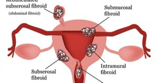 photos of fibroid tumors