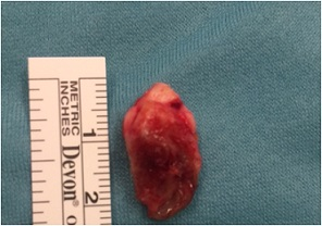 pilonidal cyst pictures 2
