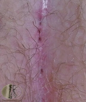 pilonidal cyst pictures