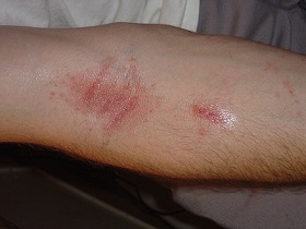 poison oak rash images