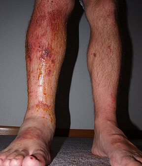 poison oak rash pictures 2