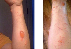 poison oak rash pictures 4