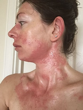 poison oak rash pictures 1