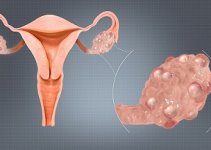 polycystic ovary images